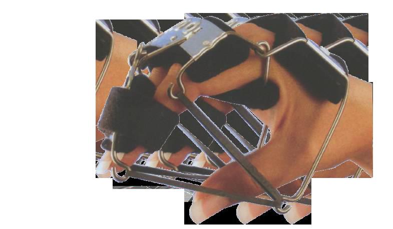 Bunnel Hand Splint Nr2B