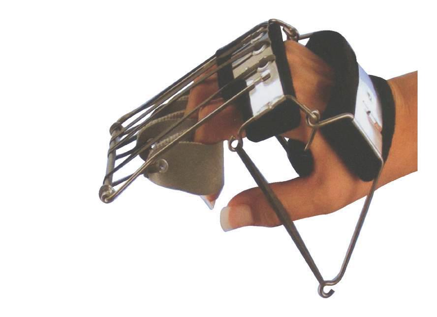 Bunnel Hand Splint Nr2A