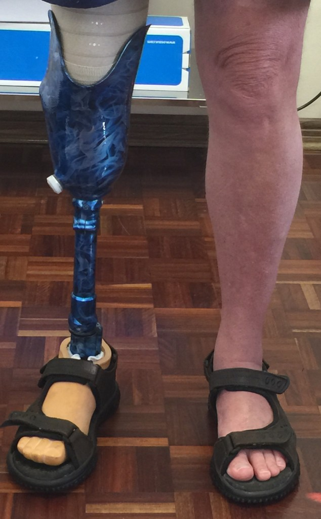 below knee prosthesis